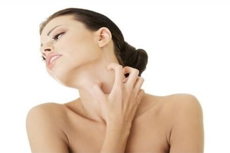 Cách điều trị ngứa da cổ hiệu quả