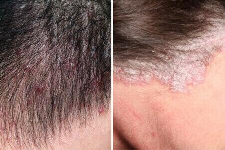 cách trị vảy nến da đầu tại nhà